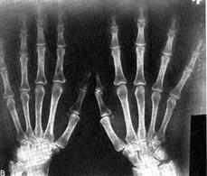 Esempio di una immagine radiografica.