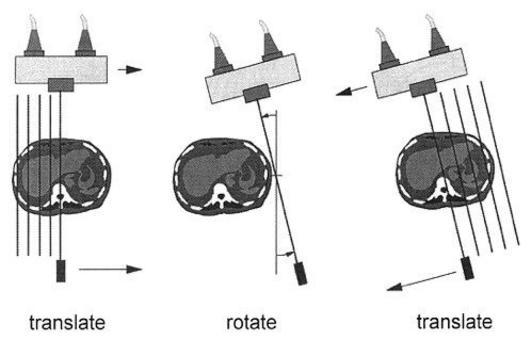 Esempio delle fasi di acquisizione in un sistema CT di prima generazione.