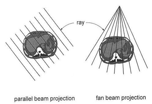 """Esempi di geometria di irraggiamento di tipo """"parallel"""" e di tipo """"fan beam""""."""