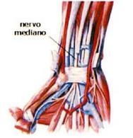 Rappresentazione del tunnel carpale con il legamento trasverso.Fonte:  Scuola Europea di medicina del massaggio