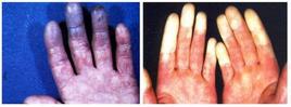 Pallore e cianosi delle dita nel fenomeno di Raynaud. Fonte:  Servizio Sistemazione Montana