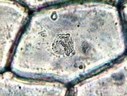 Cellula vegetale osservata in vivo. Al centro è ben evidente il nucleo