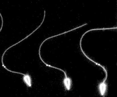4. Presiede al movimento cellulare (ad. Movimento flagellare di uno spermatozoo)