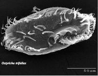 Foto al microscopio elettronico a scansione di un Ciliato
