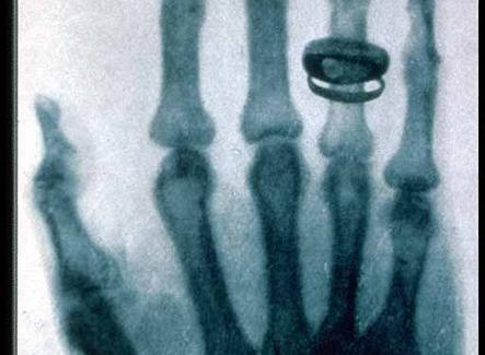 Radiografia della mano di sua moglie, eseguita da Roentgen