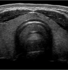 Ecografia della tiroide