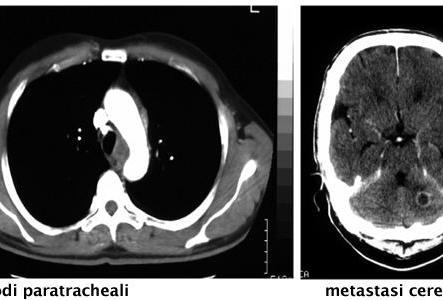 Linfonodi paratracheali e metastasi cerebellare