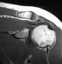 RMN alle articolazioni