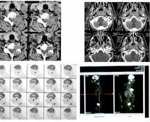 K rinofaringe: stadiazione