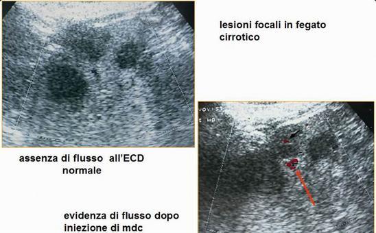 Lesioni focali in fegato cirrotico