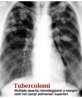 Tubercolomi