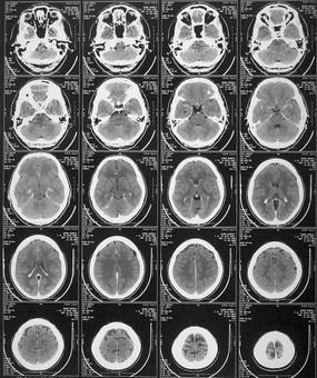 Serie di immagini assiali di un'esame TC del cranio con mdc dalla base al vertice.