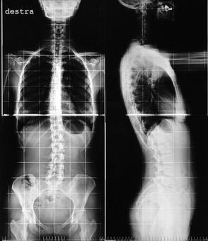 RX L'esame radiografico è utilizzato per valutare panoramicamente le curve patologiche del rachide (scoliosi , cifosi, lordosi).
