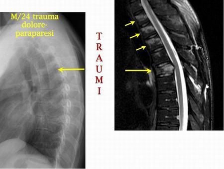 La RM permette di escludere danno midollare, e di evidenziare lesioni vertebrali non apprezzabili alla RX.