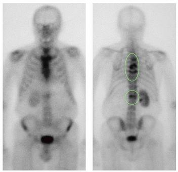 Scintigrafia ossea Paziente con K prostata e multiple localizzazioni secondarie vertebrali.