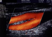 Ecodoppler a colori della biforcazione carotidea.