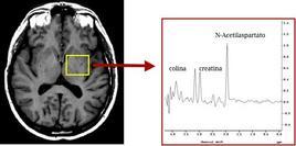 Spettro RM da tessuto cerebrale normale.