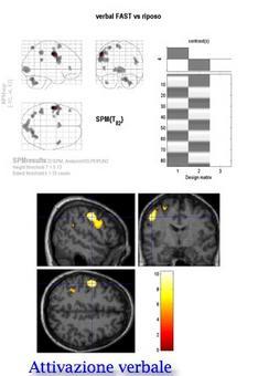 Test di attivazione verbale: il paziente è invitato a pensare delle parole e le mappe evidenziano le strutture cerebrali che si attivano nel corso del test.
