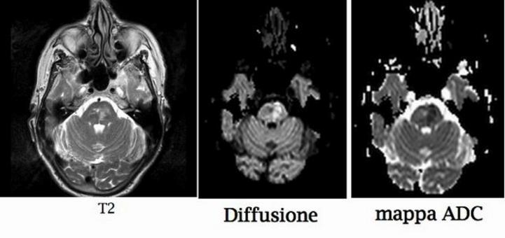 Paziente con emiparesi sinistra e lesione ischemica del ponte L'area di segnale elevato in diffusione e di segnale ridotto nella mappa ADC (coefficiente di diffusione apparente) è l'espressione dell'edema citotossico da ischemia acuta.