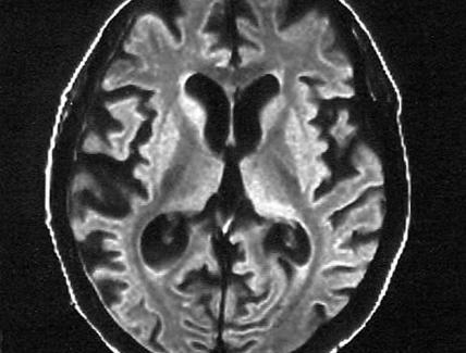 Alzheimer in età presenile (Early onset AD) con severa atrofia cerebrale.