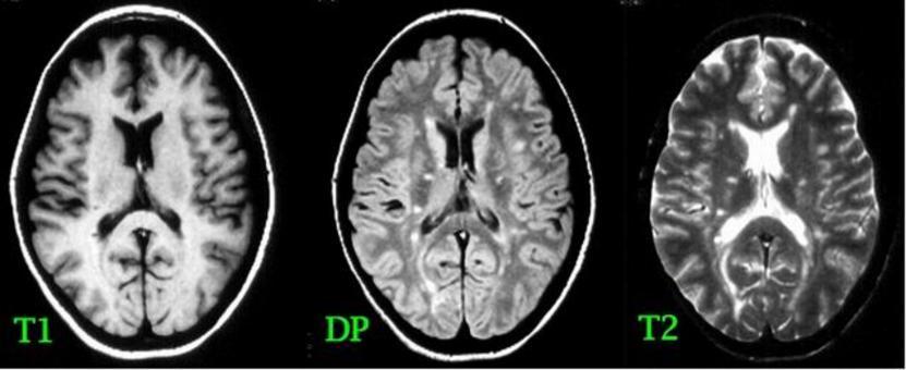 """Nella sclerosi multipla le lesioni (""""placche"""") hanno in genere forma circolare od ovalare; si localizzano a sede sia sopratentoriale (corpo calloso, centri semiovali, fibre sottocorticali, periventricolari) sia sottotentoriale (nel tronco, nei peduncoli cerebellari,  ma anche cerebellare emisferica) e nel midollo spinale."""