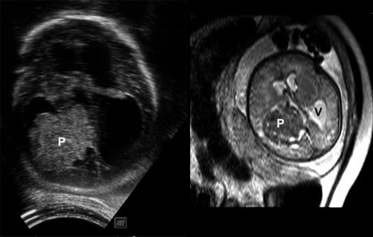 Papilloma (P) evidenziato con ecografia transfontanellare (a sinistra e con Risonanza Magnetica (a destra) (V = ventricolo).