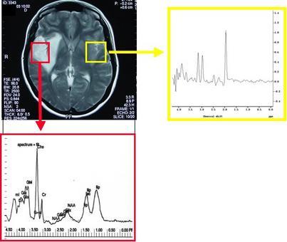 •  Lo spettro MRS protonico ottenuto da tessuto neoplastico (rosso) evidenzia un'elevata concentrazione di colina, indicatore di turnover delle membrane.