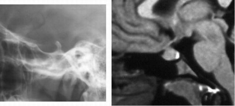 L'approccio diagnostico si basa sulla RM con mdc; la TC è utilizzata quando si devono valutare in maggiore dettaglio le strutture scheletriche o quando la RM sia non eseguibile o controindicata. La RM è la tecnica di scelta anche nel follow up degli interventi chirurgici sulla regione sellare.