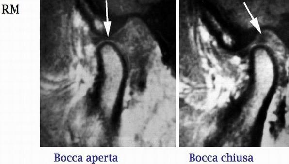 Notare la posizione del menisco (freccia).