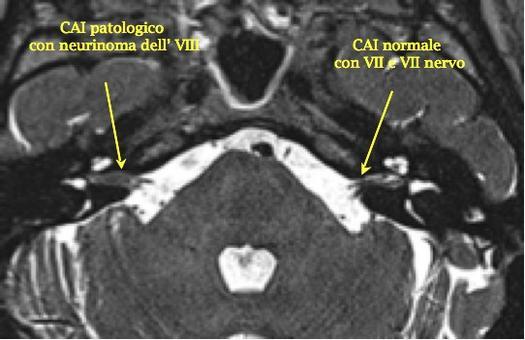Neurinoma evidenziato in una scansione assiale RM T2 a livello del canale acustico interno.