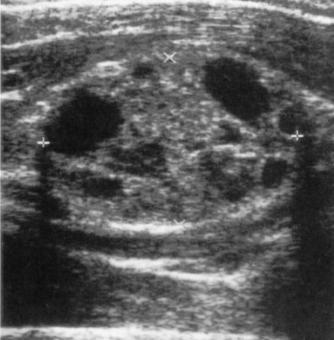 Schwannoma del nervo mediano
