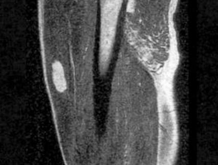 Lipoma intramuscolare della coscia