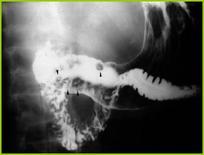 Gastrite erosiva