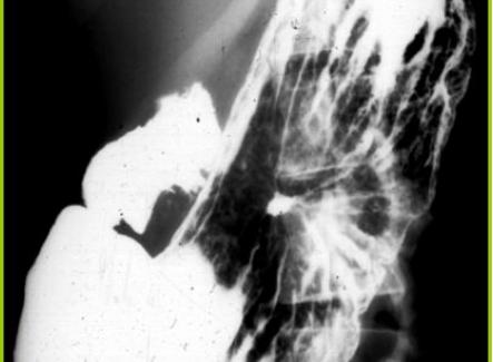 Ulcera cronica