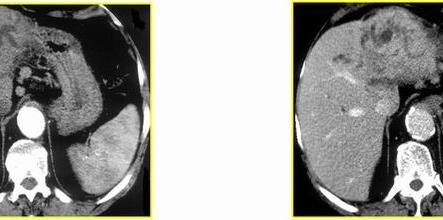 Arteriosa (sx) e Portale (dx)