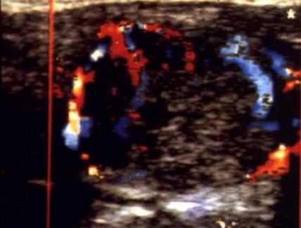 Adenoma Tiroideo Ipervascolarizzato