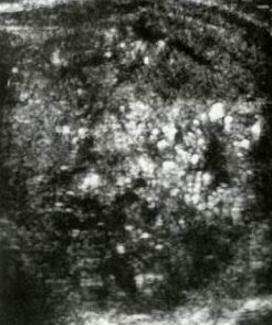 Carcinoma isoecogeno, multipli foci ecogeni