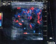 Tiroidite subacuta