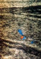 Ecografia Color Doppler di una tiroide normale