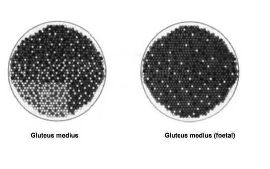 Distribution of muscle fibres in an adult pony and a foetus