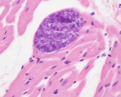 Sarcocystis in the myocardium