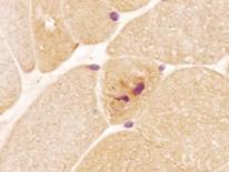 Ubiquitinated glycogen aggregates in the cytoplasm. Immunohistochemistry