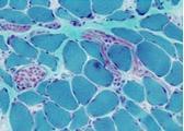 Sezione istologica di muscolo colorata con la metodica Tricromica di Engel. Questa colorazione evidenzia, in rosso i mitocondri ed il reticolo sarcoplasmatico, in verde le miofibre ed in blu i nuclei.