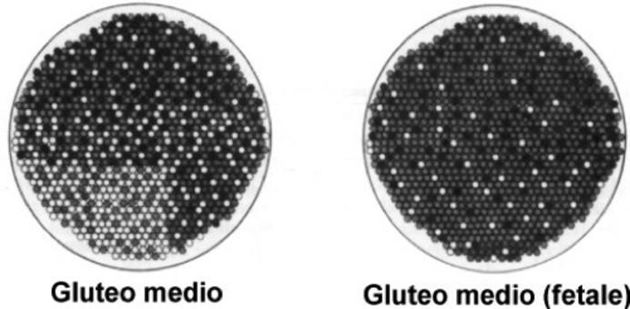 Distribuzione dei tipi di fibre nel muscolo gluteo medio di un pony adulto e di un feto