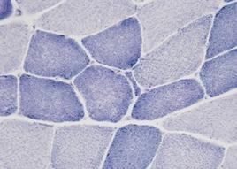 Le miofibrille sono ben evidenti all'interno della fibra muscolare con la colorazione istoenzimatica NADH.