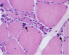 Numerose fibre atrofiche angolari e picnotic-nuclear clumps (frecce). Colorazione ematossilina eosina.