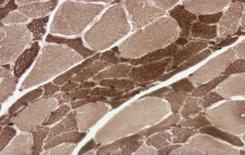 Si osservano molte fibre atrofiche angolari e diversi fiber type grouping ATPase a PH 9,4