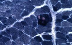 Alcune fibre appaiono ipercromiche in sezioni istologiche colorate con la tricromia di Engel. Fonte  Neuromuscolar