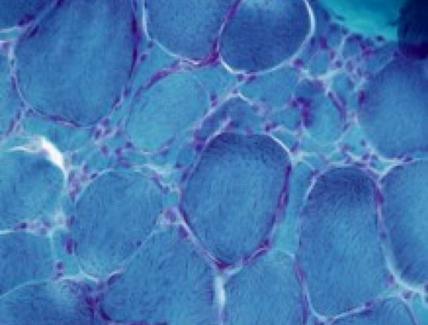 Biopsia muscolare colorata con la Tricromica di Engel mostra numerose fibre atrofiche angolari.