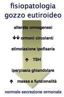 Fisiopatologia del gozzo eutiroideo